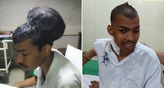 https://assets.roar.media/Bangla-News/2018/02/before-after-brain-tumor.jpg