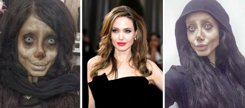 https://assets.roar.media/Hindi/2017/12/Girl-Did-Surgery-To-Look-Like-Angelina-Jolie-Ended-Up-Being-A-Zombie3.jpg